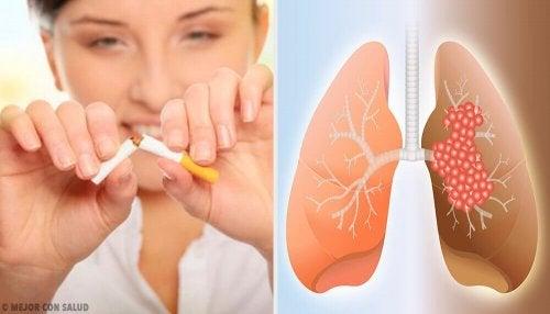 폐암의 원인과 진단에 관해 알아보자