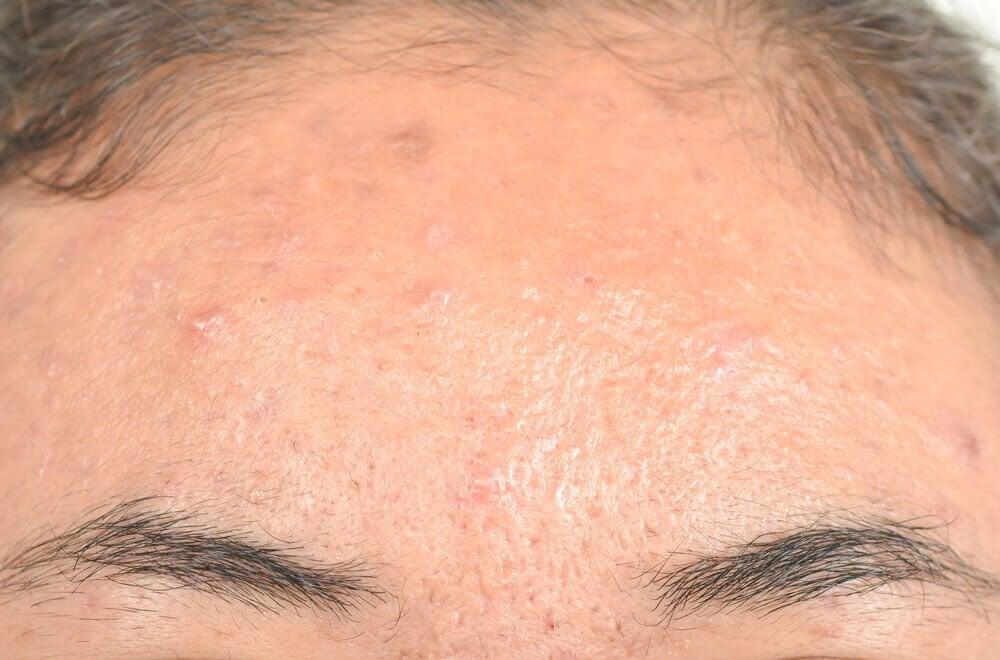 지루성 피부염에 효과적인 자연 요법