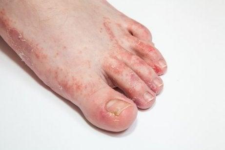 피부 곰팡이균을 퇴치하는 15가지 치료법