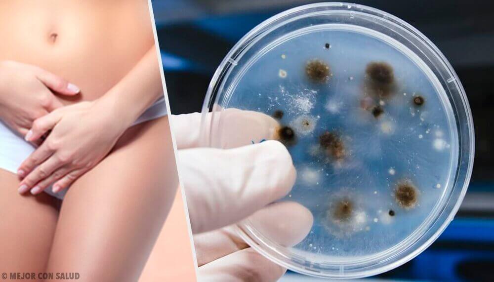 질 감염의 유형과 원인