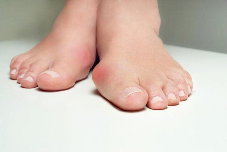 건막류를 퇴치하는 데 도움이 되는 5가지 약초 요법