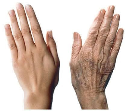 손이 늙지 않도록 관리하는 7가지 방법