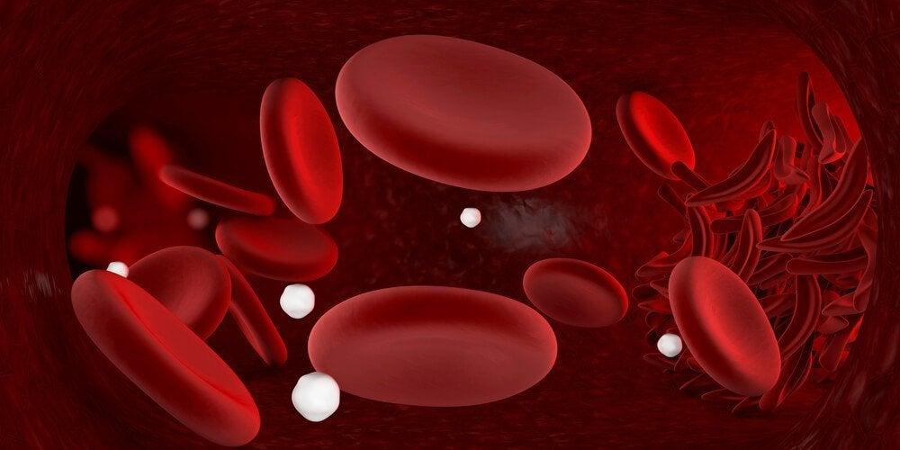 빈혈이 생기는 원인과 빈혈 자연 요법
