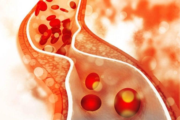 콜레스테롤 수치가 높은 사람들이 저지르는 5가지 실수