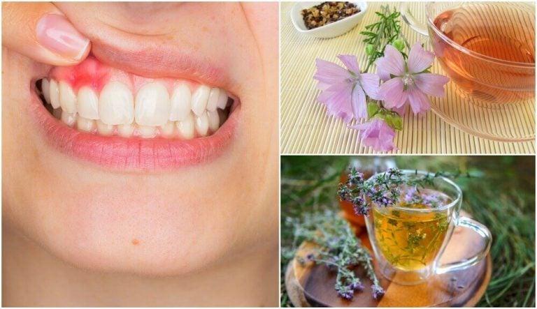 치은염 걱정을 없애는 5가지 자연 치료제