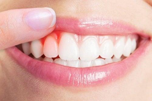 잇몸 감염 치료에 도움이 되는 5가지 자연 요법