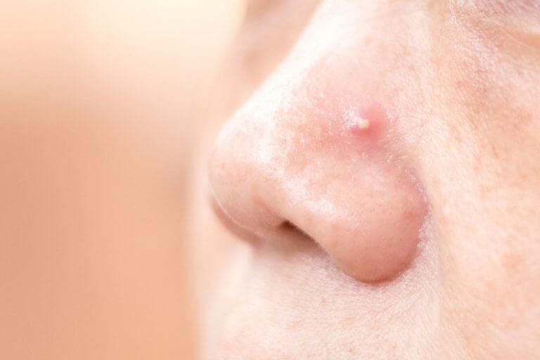 코의 여드름을 없애는 4가지 자연 요법