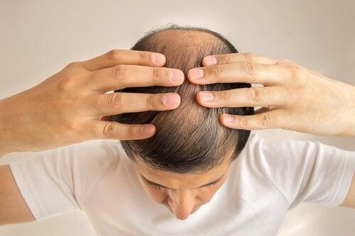 대머리를 방지하기 위한 3가지 자연 요법