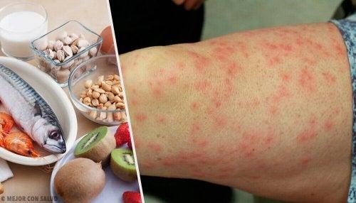 흔한 음식 알레르기 및 대체 식품들