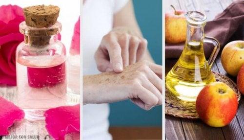 손등 기미를 옅게 하는 8가지 자연 치유법