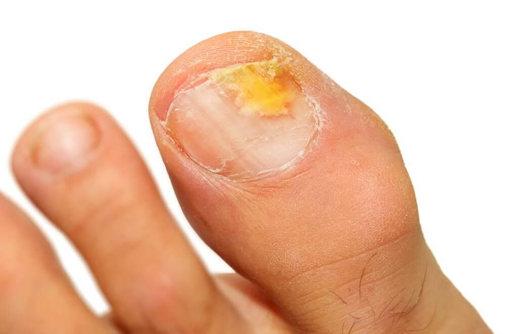 손발톱 진균증을 제거하기 위한 에센셜 오일 5가지