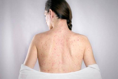 등에 생긴 헤르페스에 효과적인 5가지 천연 치료제
