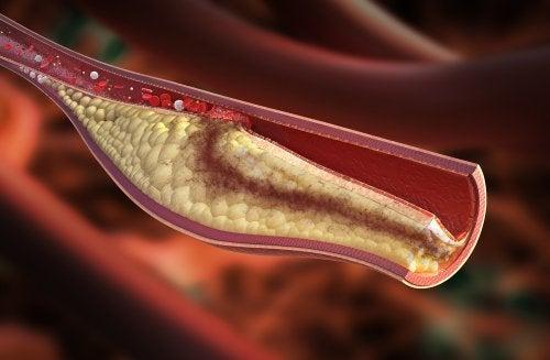 동맥경화에 좋은 자연 치유법