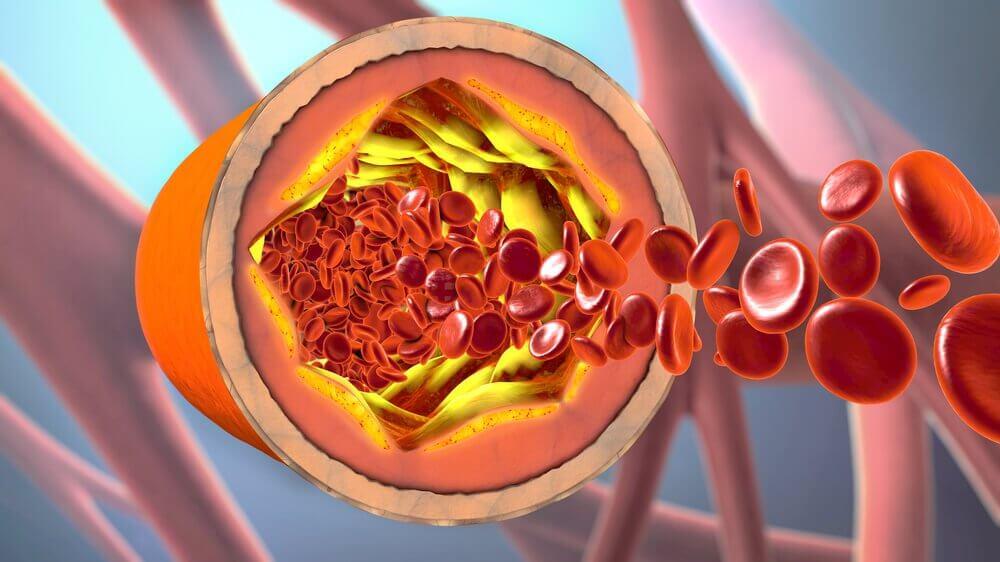동맥을 청소하는 자연 치료제, 카나리아 씨앗 계피 차
