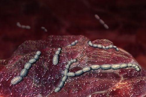 성홍열은 어떤 병일까?