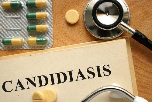 칸디다 질염의 치료