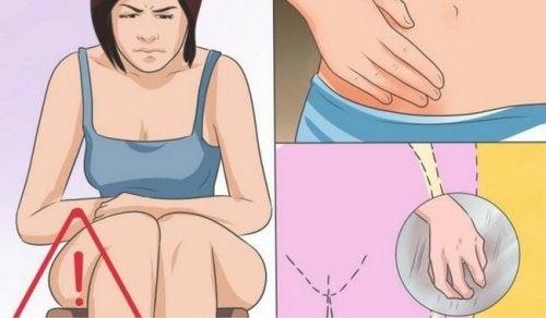 칸디다 질염의 원인, 증상 및 치료