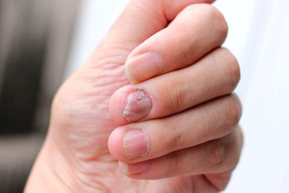 손발톱 건선을 위한 5가지 자연 치유법