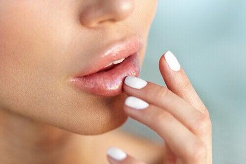 입술이 트는 것을 막는 6가지 방법