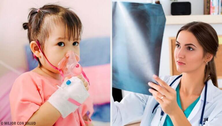 폐렴 치료에 대해 알아야 할 모든 것