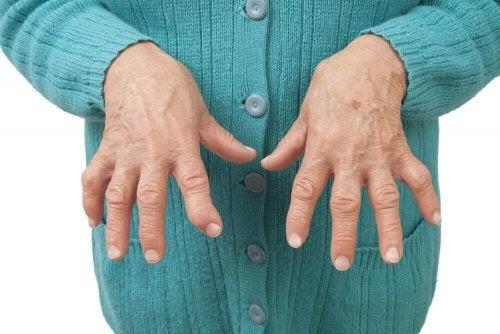 류마티스 관절염을 완화하는 자연 요법