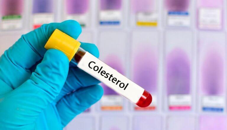 콜레스테롤 수치를 줄이는 자연 요법 6가지