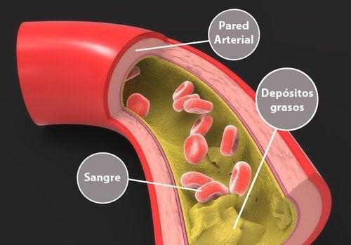 콜레스테롤 수치를 줄이는 자연 요법 6가지 동맥