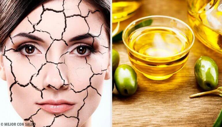 건조한 피부를 보습하는 손쉬운 자연 요법