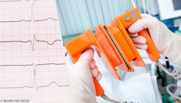 심방세동의 원인 및 진단법