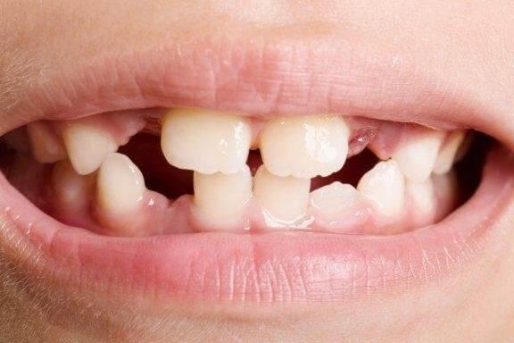 치아 발육부전의 유형과 치료법