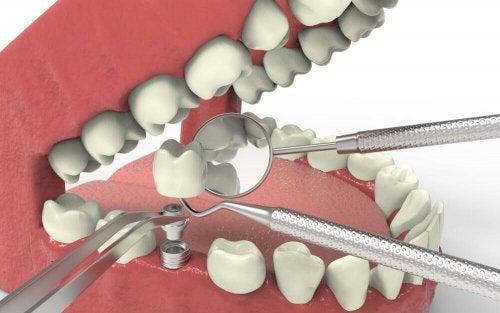 치아 발육지연의 유형과 치료법