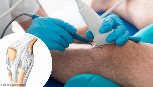 무릎 관절경 수술