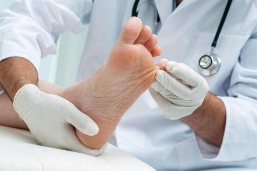 표재성 피부 곰팡이증에 대한 자연 치유법