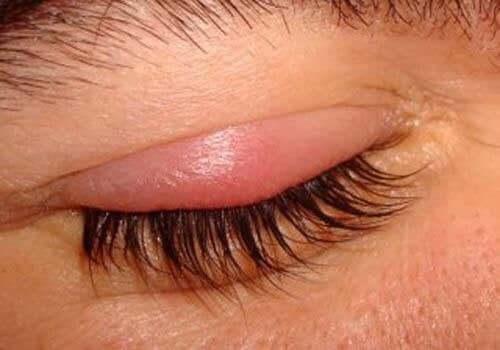 안검염의 원인, 증상 및 치료법