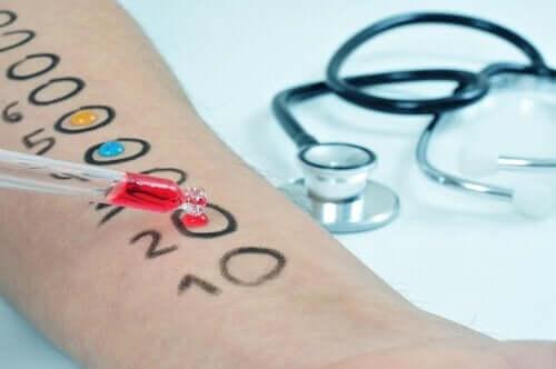 알레르기 검사 유형 및 절차