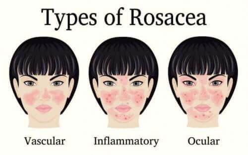 빨간 코 증상