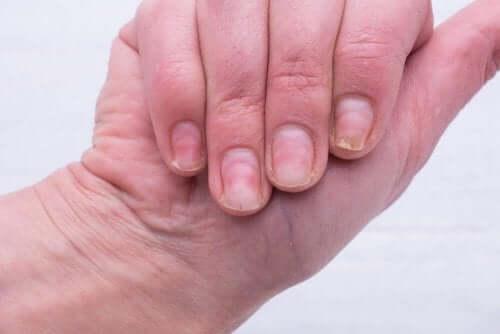 황색 손톱을 치료하는 자연 요법
