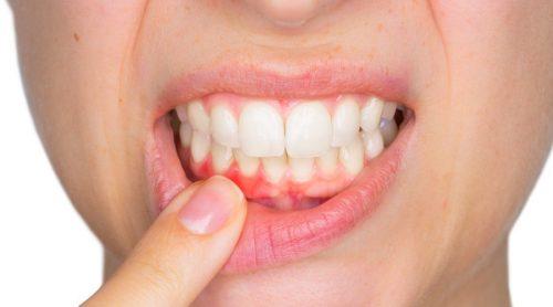 치아 낭종은 무엇일까?