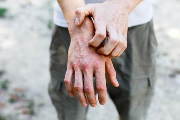 접촉성 피부염 치료에 도움이 되는 6가지 자연 요법