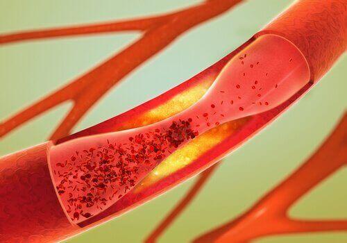 막힌 동맥 뚫는 데 도움이 되는 4가지 자연 요법