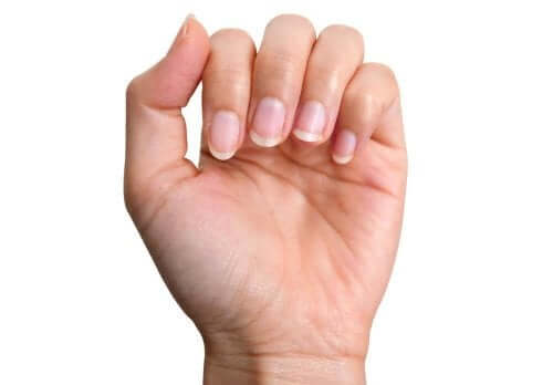 황색 손톱을 자연적으로 치료하는 방법