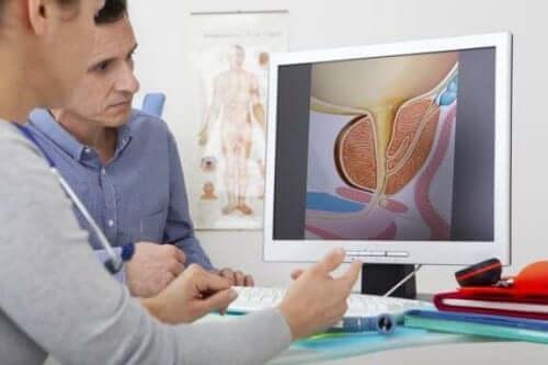 전립선 비대증의 치료법