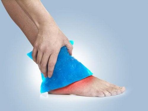 발목염좌 보완 요법