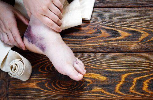 발목 염좌를 완화하는 보완 요법