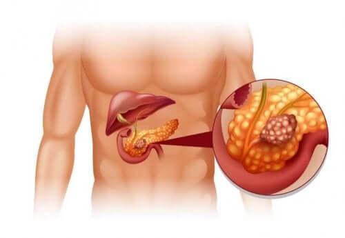 췌장 신경내분비 종양의 치료
