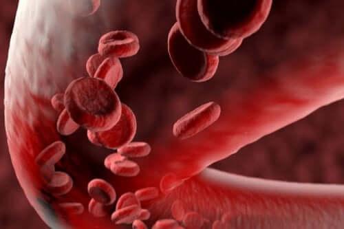 혈관염의 종류
