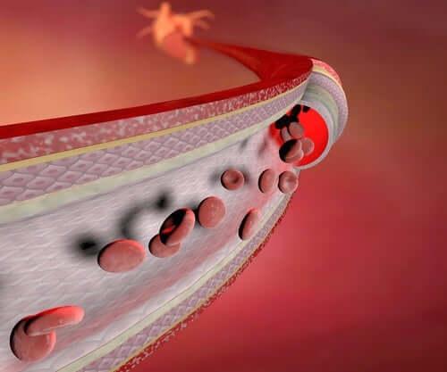 혈관염은 어떤 질병일까?