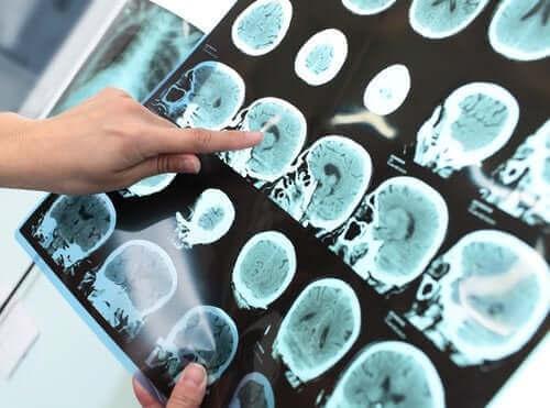 신경 인지 장애, 치매