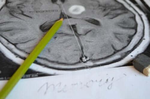 기억 상실증의 증상 및 예방