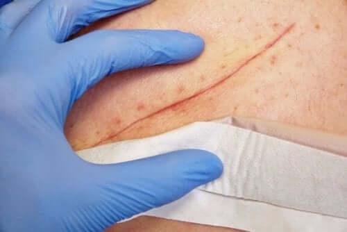 상처를 치료하는 방법